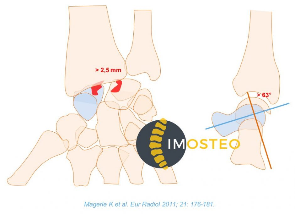 Visuel Imosteo d'une articulation osseuse